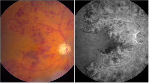Retinal Vein Occlusion American Academy Of Ophthalmology