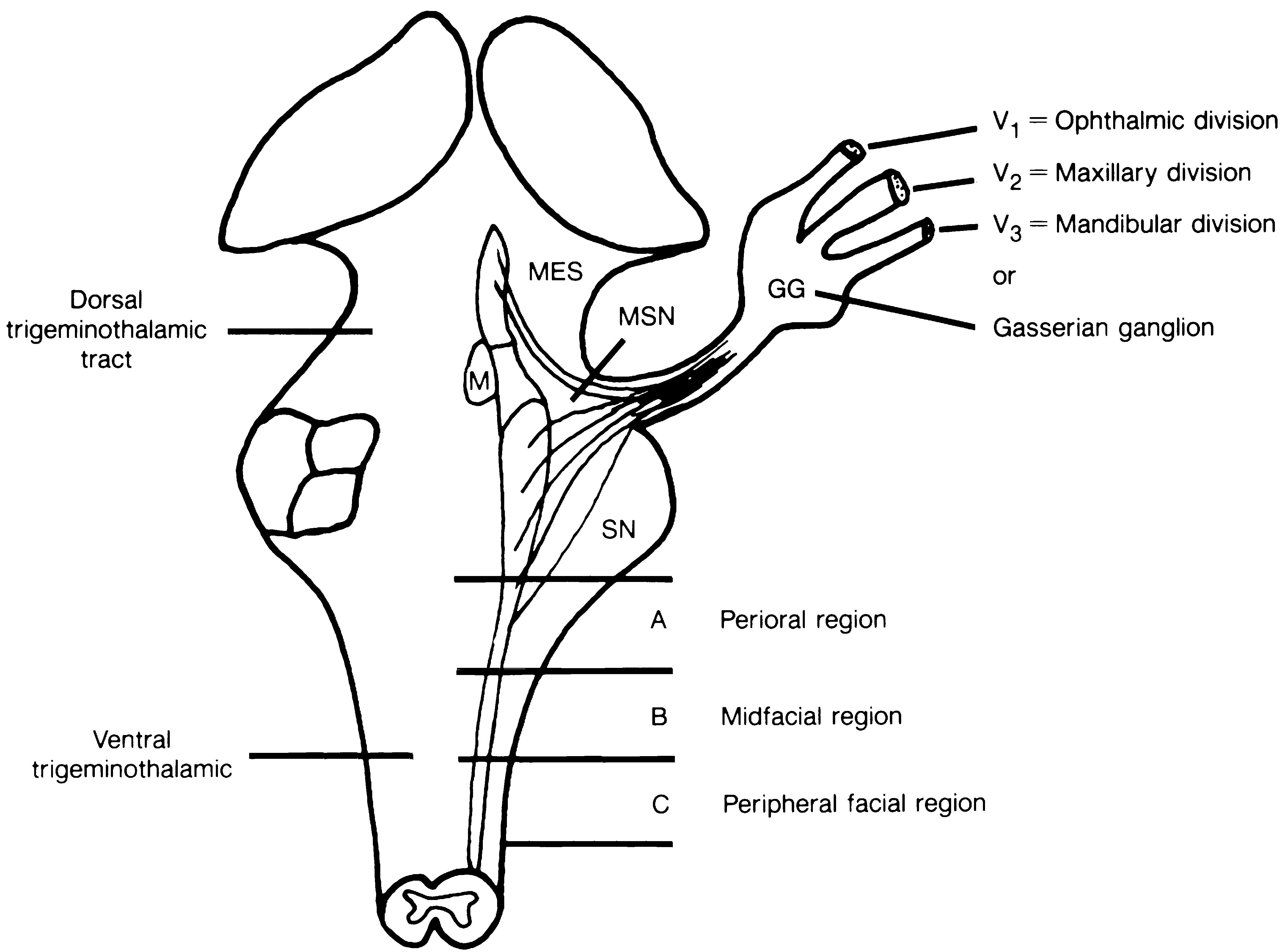 Cranial nerve V complex (dorsal view of brain stem