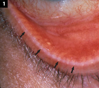 Managing Blepharitis Tried And True And New Approaches