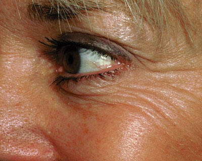 Photograph of eye wrinkles before Botox