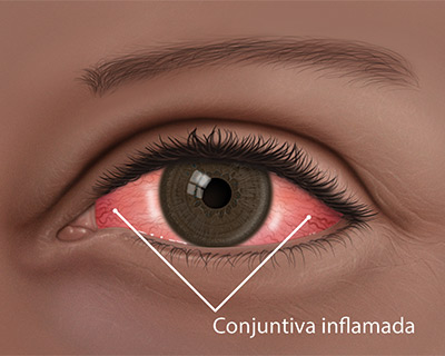 Conjuntiva inflamada de ojo rojo