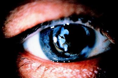 retin a cream uses
