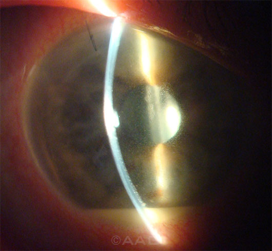 A large U.S. study corroborates earlier findings that endophthalmitis, like this case seen 4 days after cataract surgery, can be significantly reduced with intracameral antibiotics.