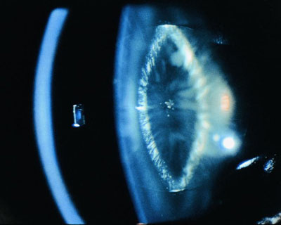 Lamellar (or zonular) cataract.