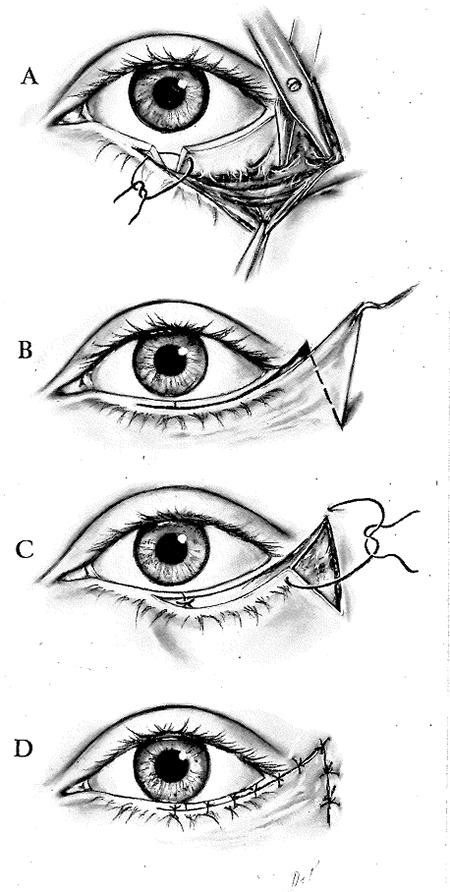 Modified Kuhnt Szymanowski Procedure Manual
