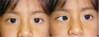 strabismus duane retraction syndrome american academy of