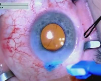 ophthalmology Mature retina