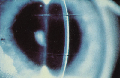 Surface Ablation Photorefractive Keratectomy Lasek Epi Lasik And