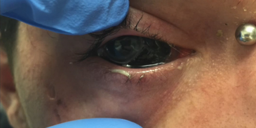 Eyeball Tattoos Are Even Worse Than They Sound - American