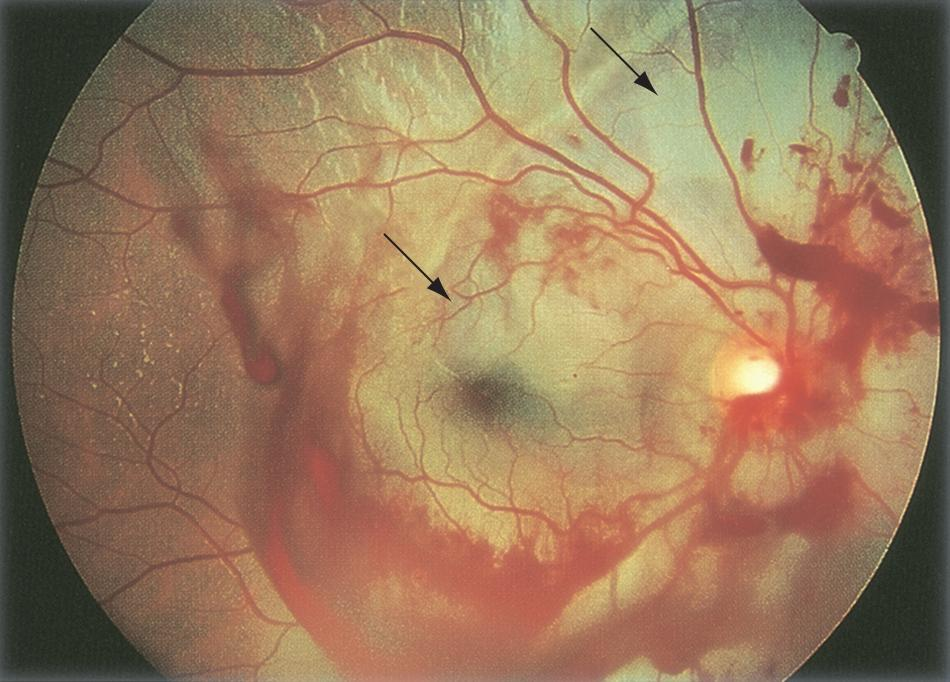 Commotio Retinae American Academy Of Ophthalmology