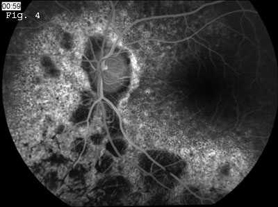 Fluorescein Angiography 2