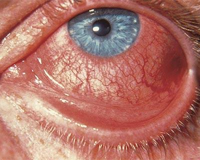 Inflamación por conjuntivitis viral