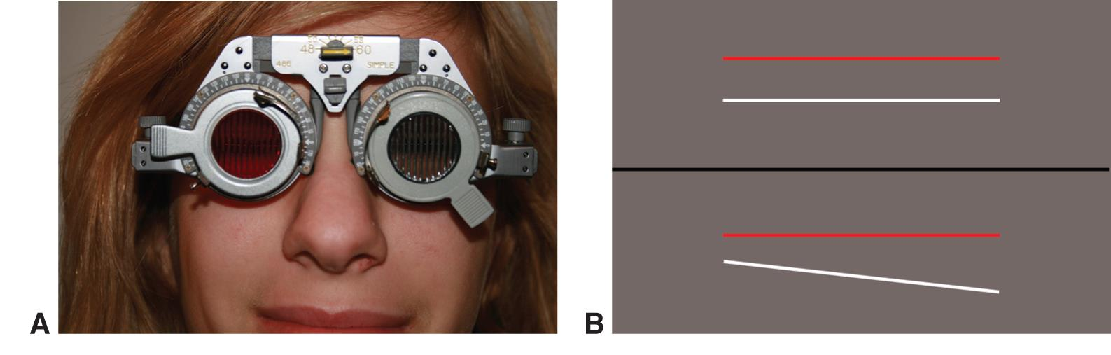 Double Maddox Rod Test American Academy Of Ophthalmology
