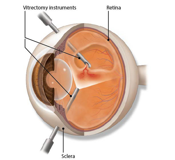 Illustration of vitrectomy surgery. Vitrectomy is a type of eye surgery used to treat problems of the eye's retina and vitreous.