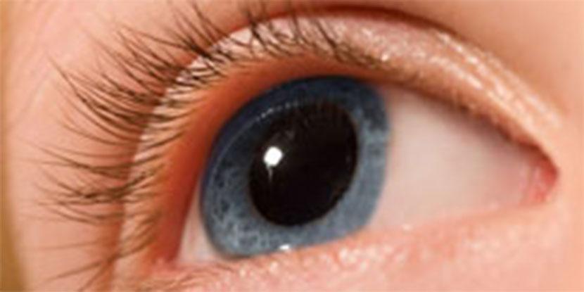 miopie pupile dilatate)