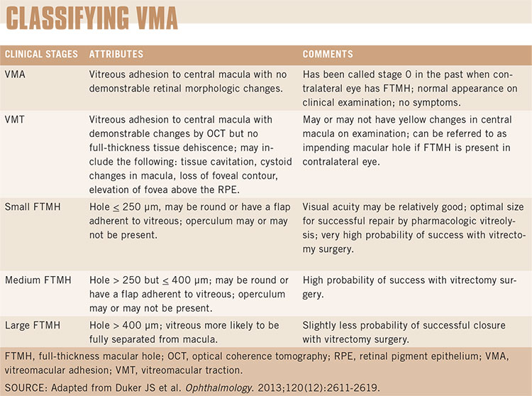 Managing Vitreomacular Interface Diseases - American Academy of