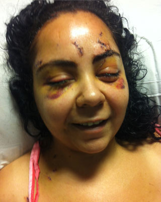 Julissa in the hospital shortly after being attacked.