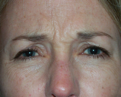 Photograph of forehead wrinkles before Botox