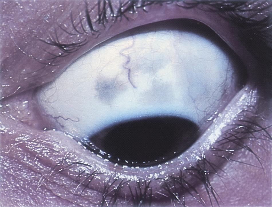 Congenital Ocular Melanocytosis American Academy Of