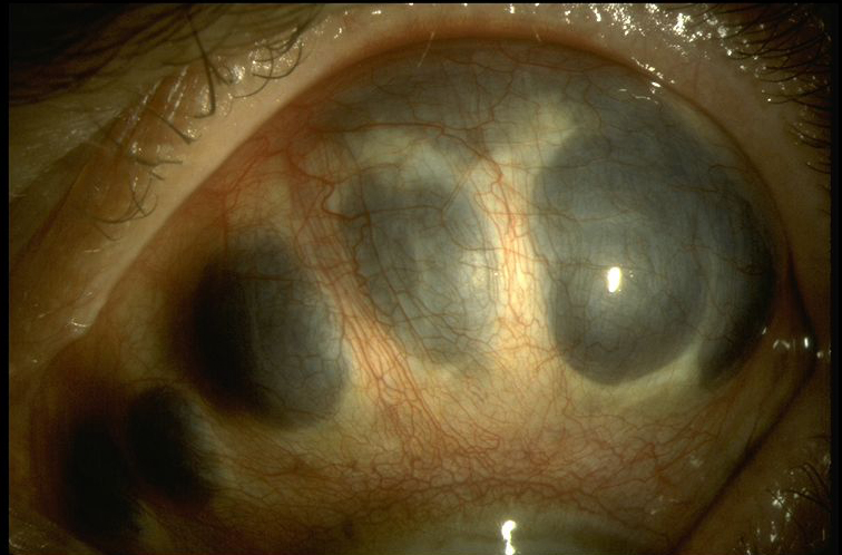 Scleromalacia Perforans American Academy Of Ophthalmology