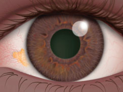 What Is A Pinguecula And Pterygium Surfer S Eye American Academy Of Ophthalmology
