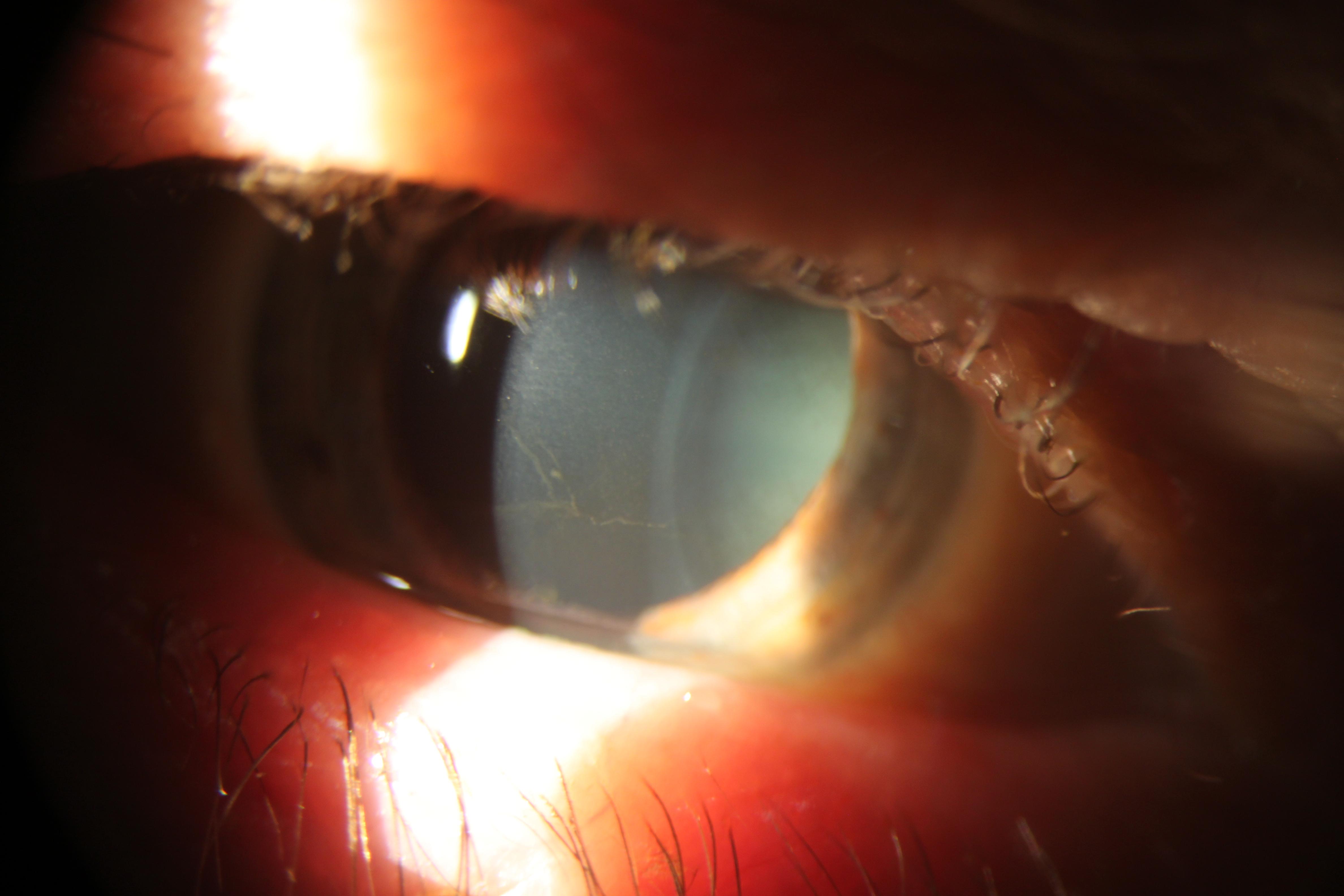 Corneal Verticillata American Academy Of Ophthalmology