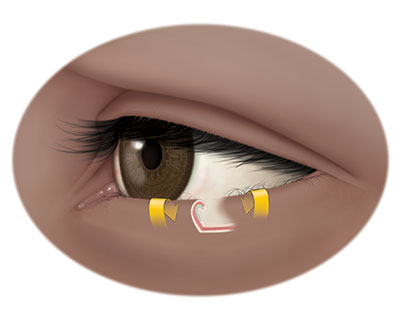 Illustration of lower eyelid with entropion, or lower eyelid that turns inward