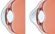 Izquierda: córnea normal; derecha: la córnea con queratocono.