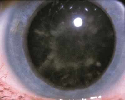 "Diabetic cataract, or ""snowflake"" cataract seen, in rare cases, in patients with uncontrolled diabetes mellitus."