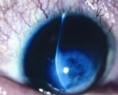Close up of eye with keratoconus, illuminated during exam.