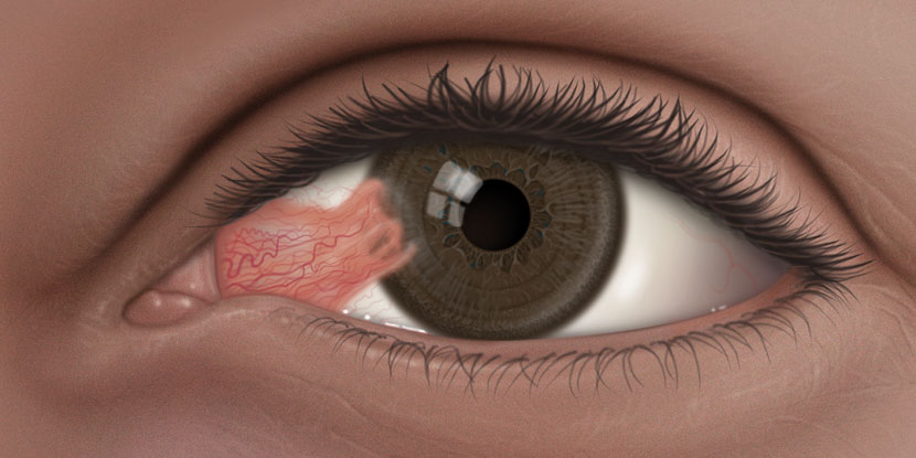 Illustration of a pterygium (surfer's eye), a fleshy growth on the eye