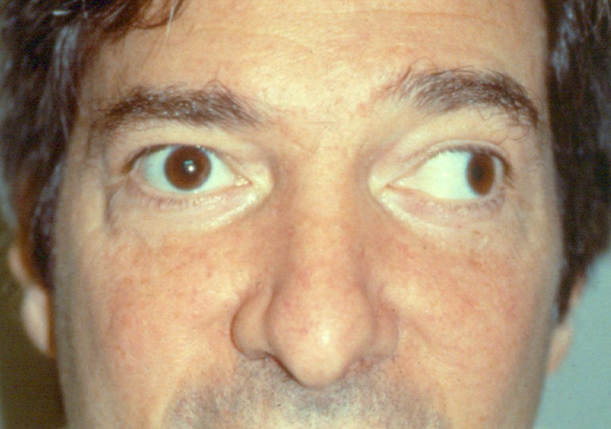 Really Treatment strabismus adults