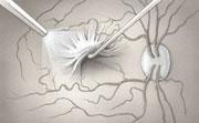 Su oftalmólogo utiliza instrumentos pequeños para extirpar el tejido arrugado en la mácula.