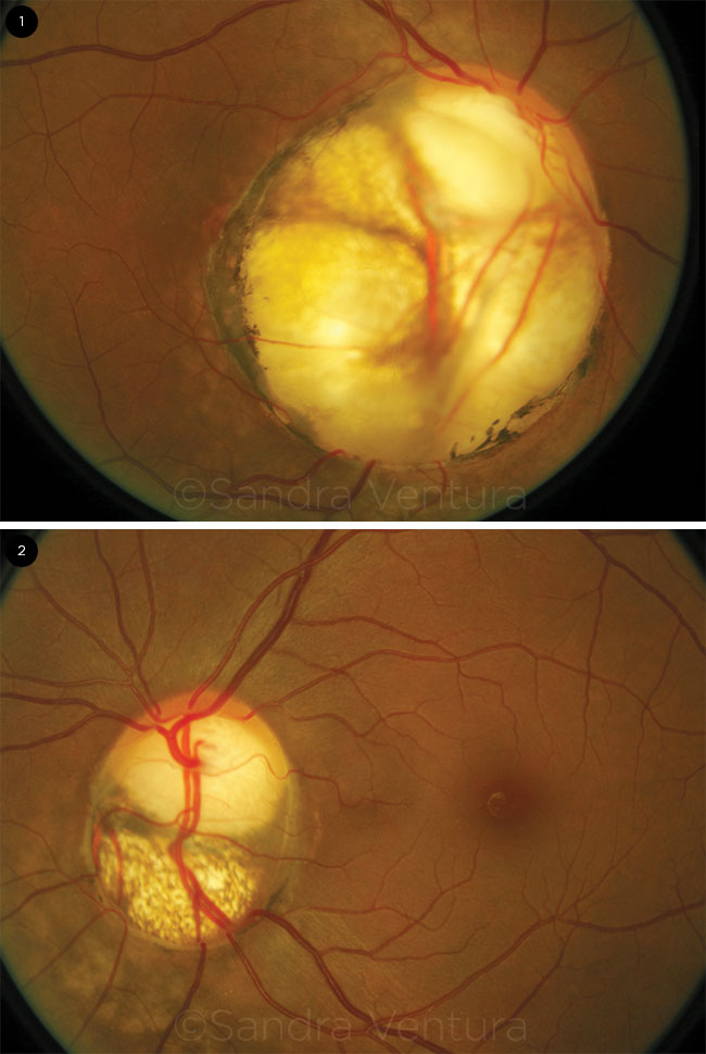 Colobomas of the Optic Nerve