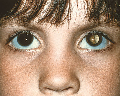 Photograph of a child showing an abnormal white eye reflex in the back of their eye. This can be a sign of eye disease.