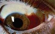 Una hemorragia subconjuntival sucede cuando la sangre de un vaso sanguíneo roto aparece en la parte blanca del ojo.