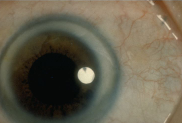Corneal Arcus American Academy Of Ophthalmology