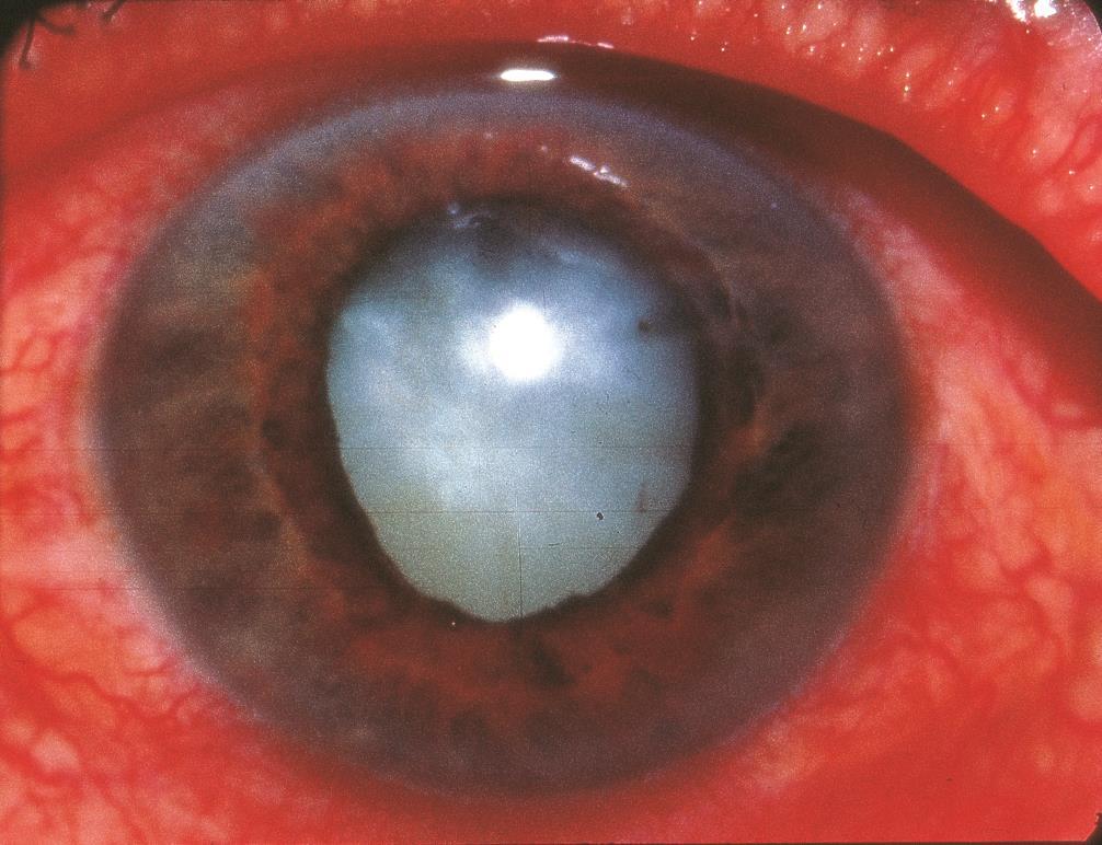 Phacomorphic Glaucoma American Academy Of Ophthalmology