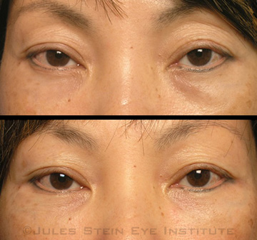 Treating Tear Trough Deformities With Dermal Fillers - American