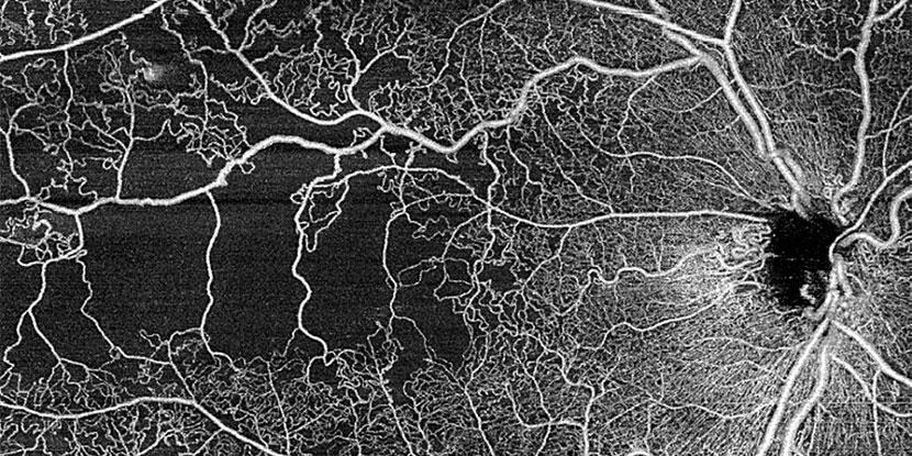 Week in review: Eye shingles, Lensar upgrade, Zeiss device