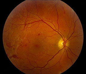 How To Classify The Diabetic Eye American Academy Of