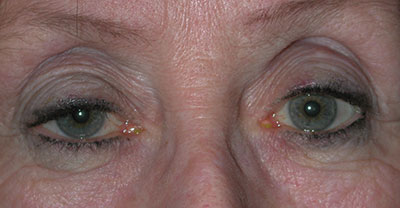 Older woman with ptosis, or droopy eyelid