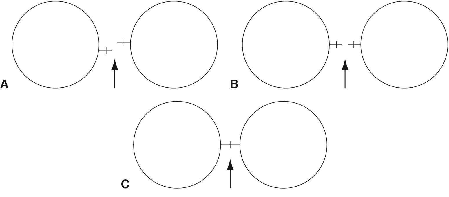 Diagrammatic representation of manual keratometry
