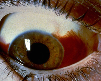 Photo of subconjunctival hemorrhage, when blood appears in the white of the eye from a broken blood vessel.