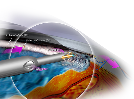Migs Expanding Options For Glaucoma Treatment American