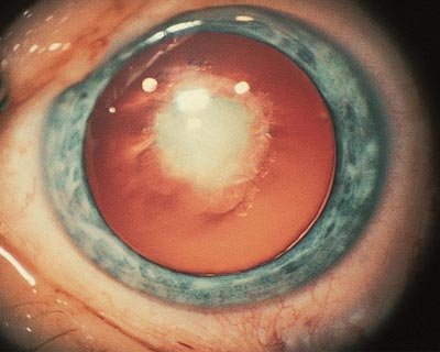 Congenital cataract (a cataract present at birth).