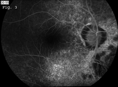 Fluorescein Angiography 1