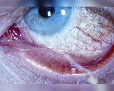 Close up of an eye with pink eye (conjunctivitis) and mucus.