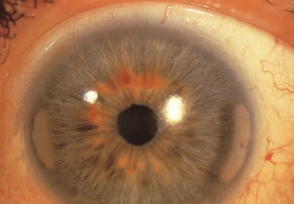Band Keratopathy American Academy Of Ophthalmology