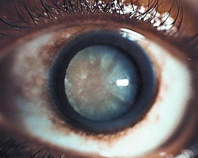 Una catarata – un cristalino opacificado detrás de la pupila – visto en un ojo adulto.
